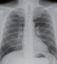 肺炎 レントゲン 肺のレントゲンの白い影には様々な原因が考えられます